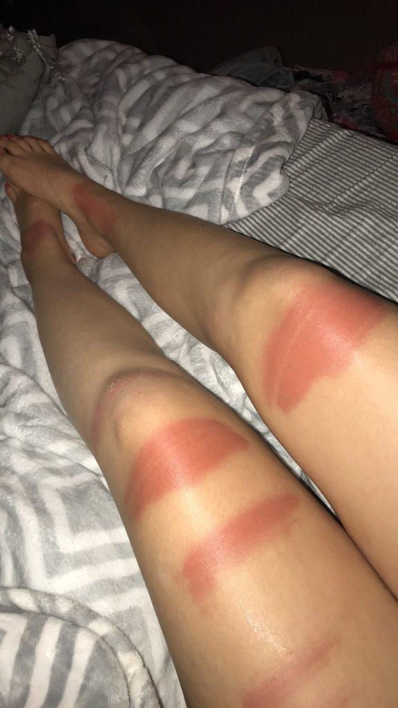 verbrande benen spijkerbroek